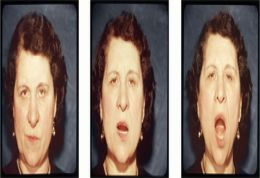 Triptych of portrait images taken from dentist photographs c.1940s. Judith Katz. University of Brighton.